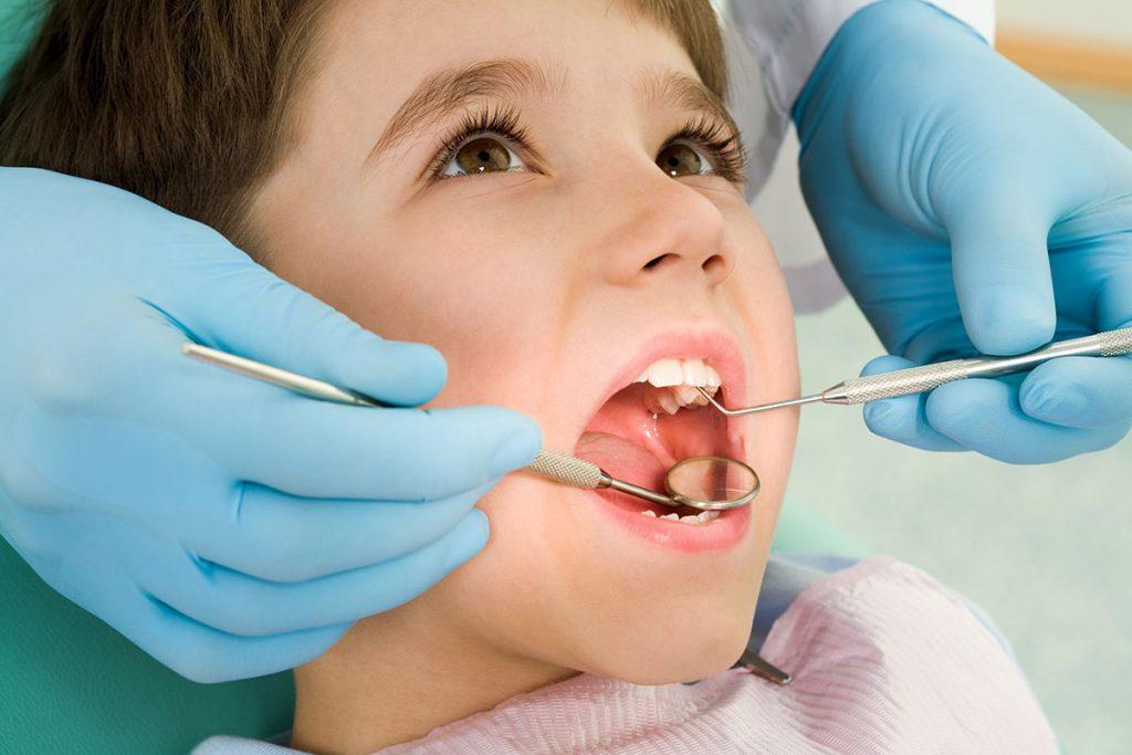 Fluorizacija i Vadjenje zuba - Ardent Centar Sombor