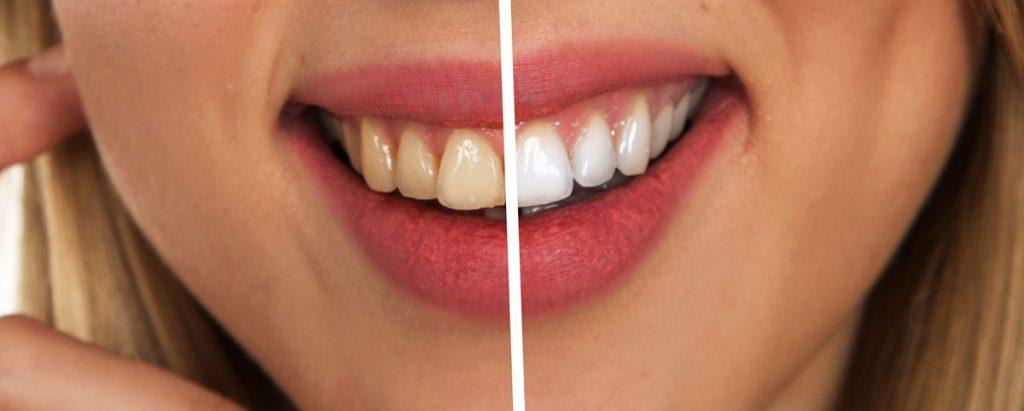 Izbeljivanje zuba - Ardent Centar Sombor
