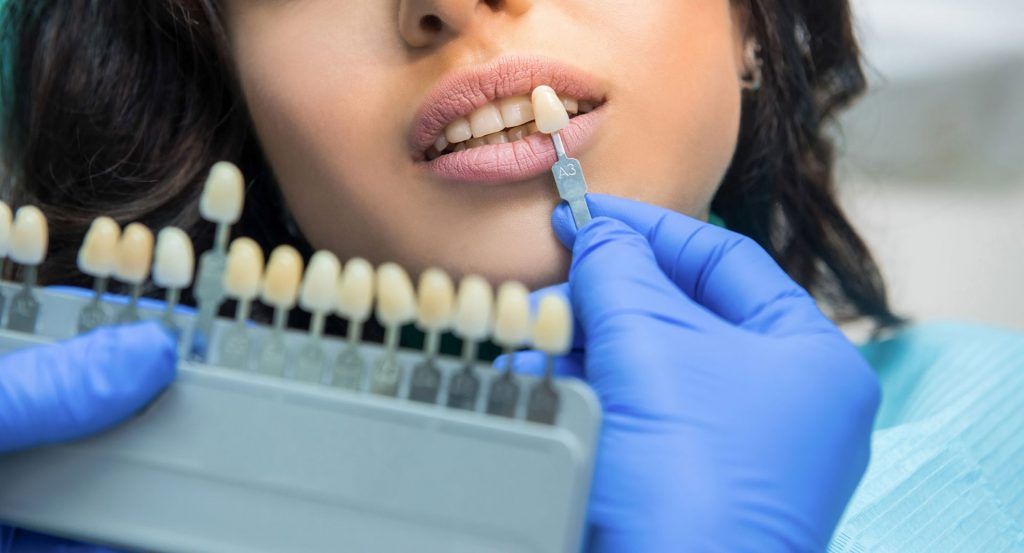 Navlake za zube - Bezmetalne krunice
