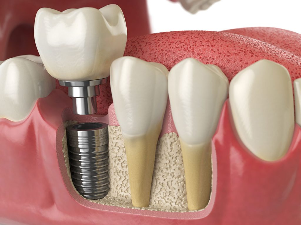 Proces ugradnje zubnih implantata - Ardent Centar Sombor
