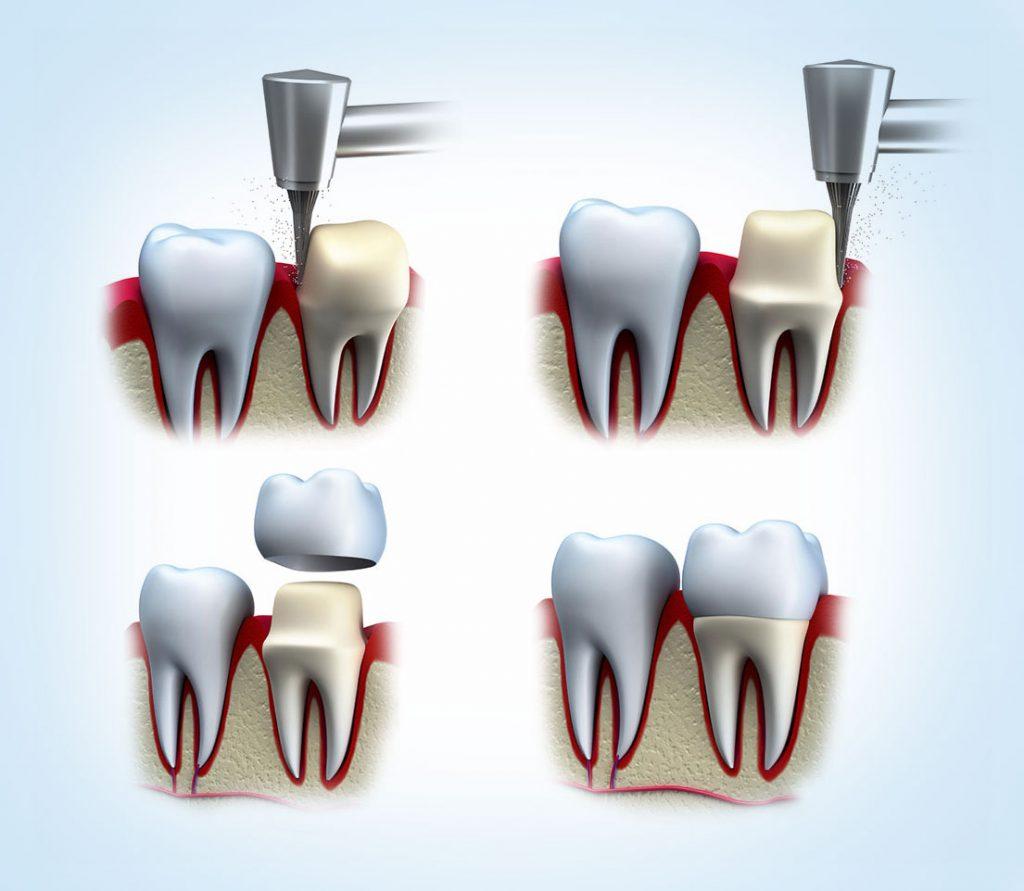 Zubne krunice i mostovi - Ardent Centar Sombor