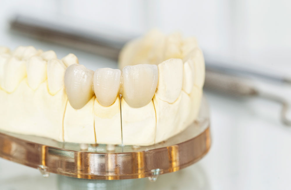 Zubni most