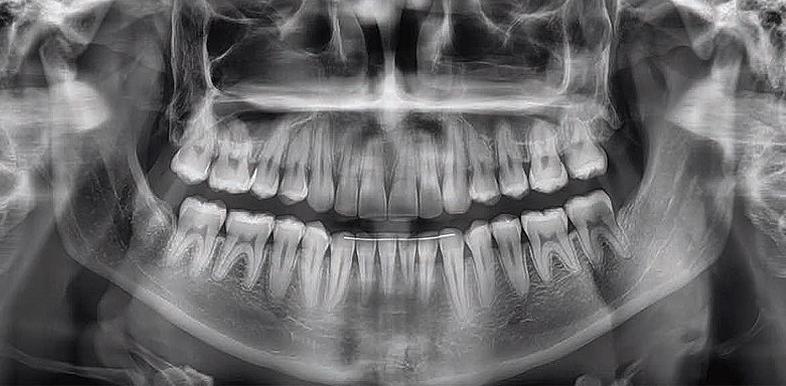 Ardent Centar ortopan