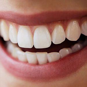 Novi blistavo beli osmeh – vaš novogodišnji poklon!