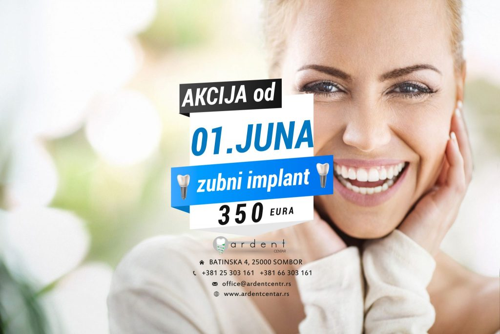 Akcija od 01.06. do 24.08.2019. – zubni implant 350 evra!