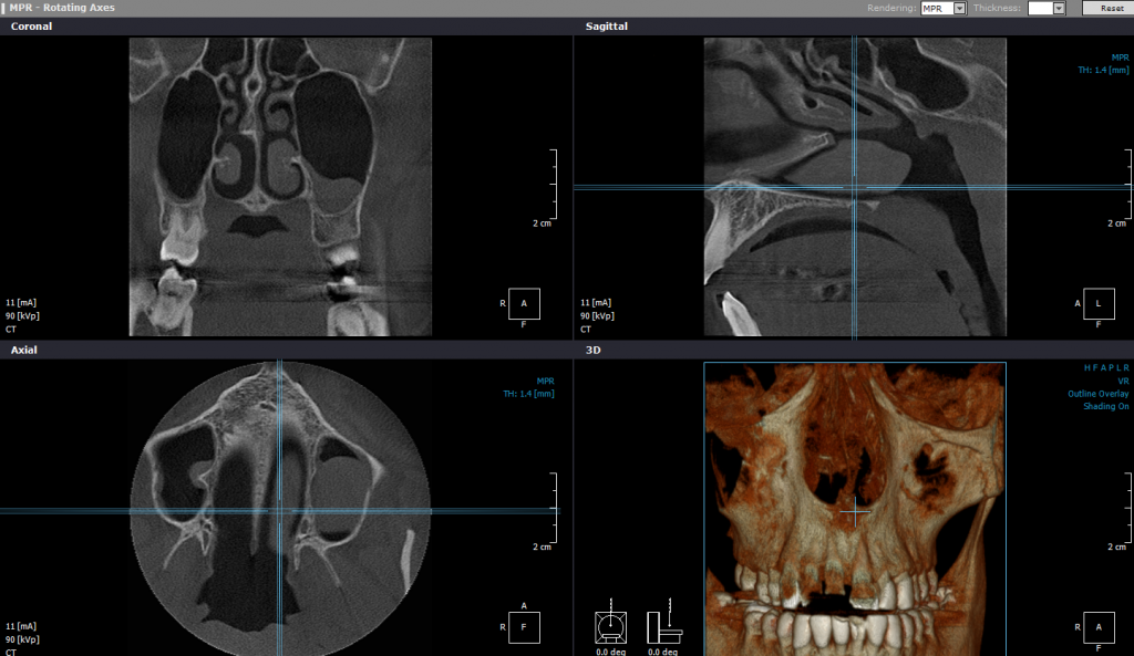 CBCT/3D - Stomatoloska ordinacija Sombor