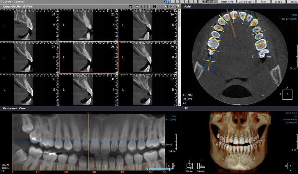 CBCT Primena u endodonciji