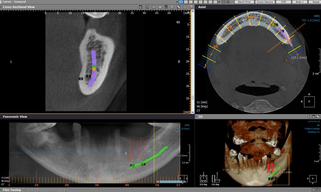 CBCT Primena u implantologiji