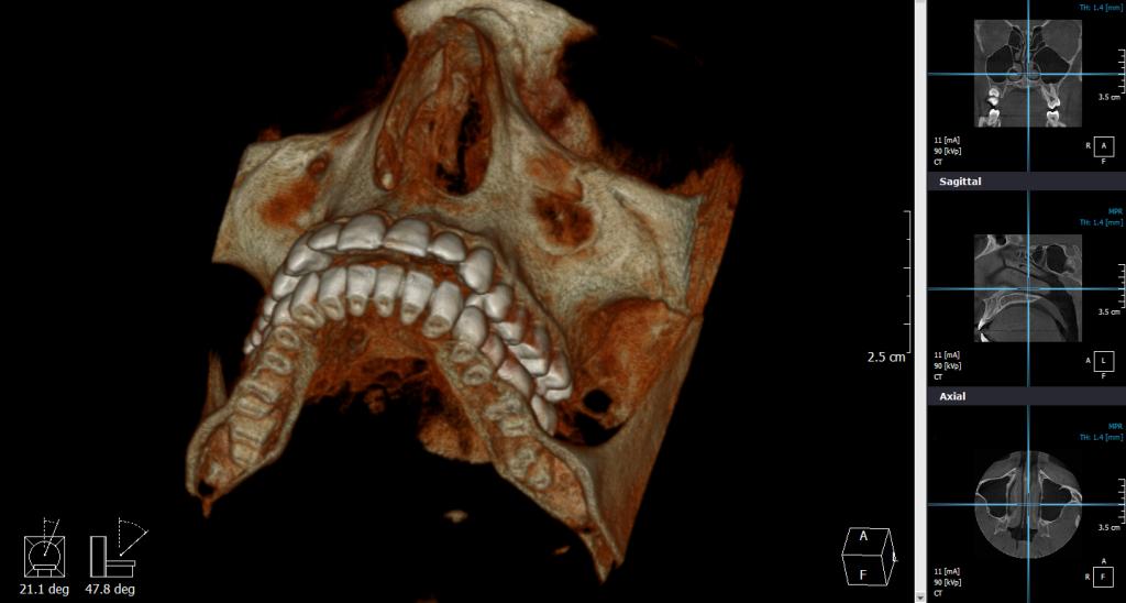 Cone Beam kompjuterizovana tomografija