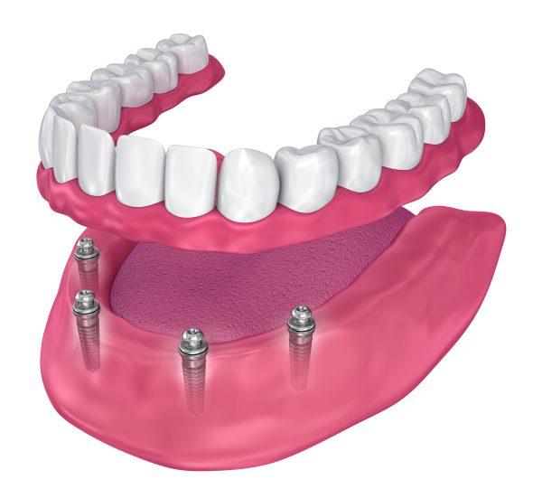 All-on-four-Zubni-implanti