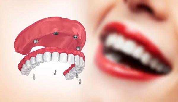 """""""All on four"""" koncept – izađite u toku dana sa """"fiksiranim zubima"""" i novim osmehom!"""