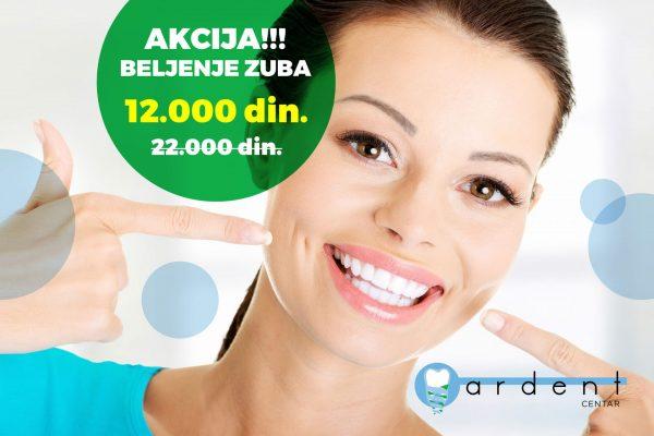 AKCIJA – Beljenje zuba i do 45% niže cene!