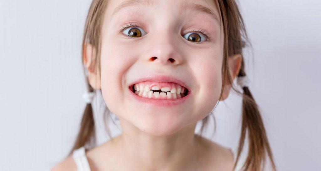 Mlečni zubi
