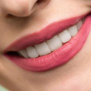 Šta su krunice zuba?