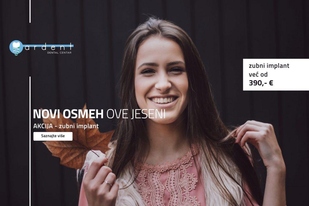 AKCIJA – zubni implant 390 evra!